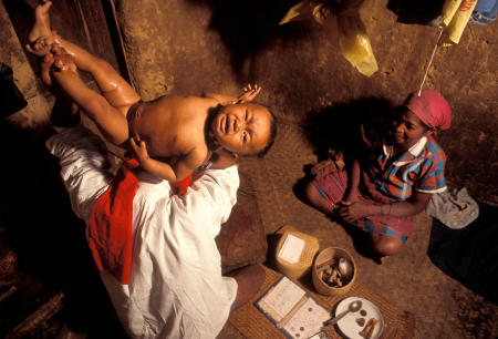 A Malagasy child is treated by a traditional healer for a condition called Taitaitra. Actually growth spasms, parents believe the crying is caused by evil spirits attaching themselves to infants.